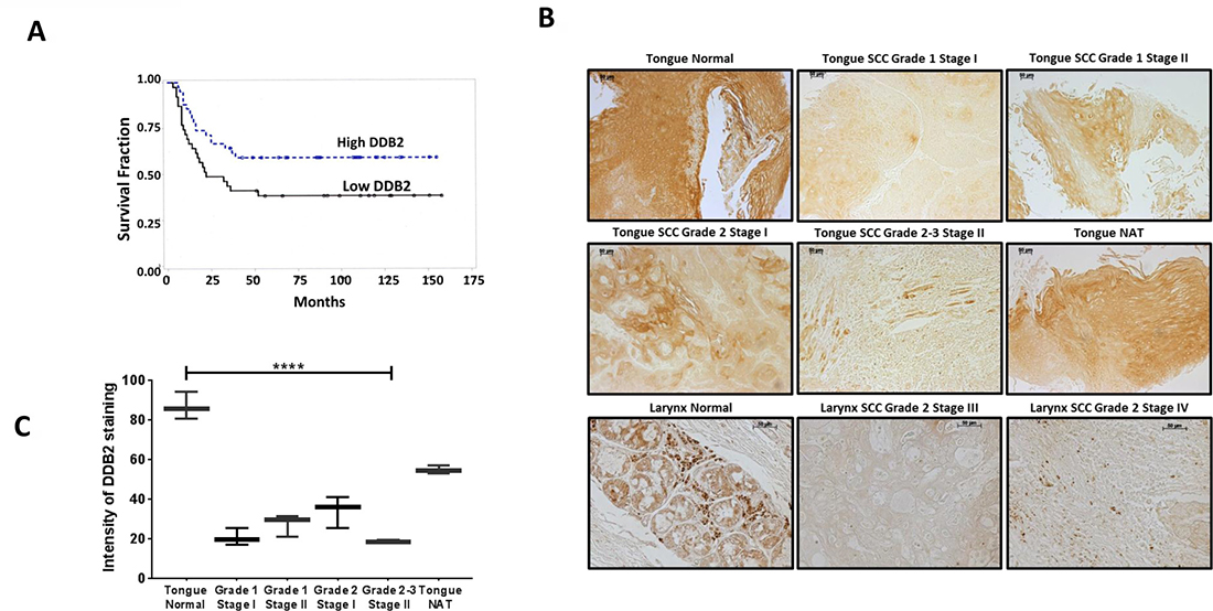 Lower DDB2 expression in HNSCC tumor tissues.