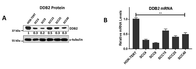 Lower DDB2 expression is HNSCC cells.