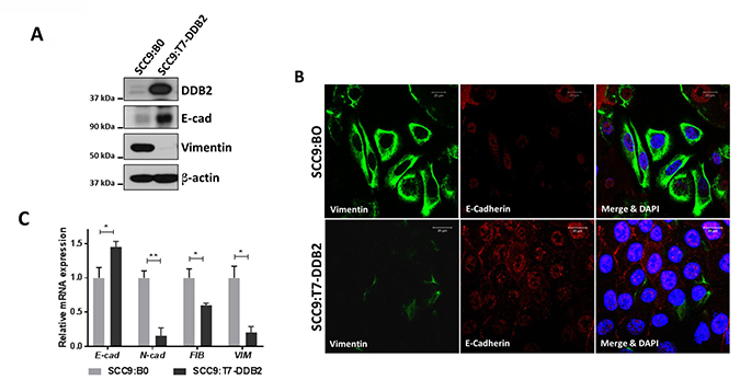 DDB2 inhibits EMT in SCC9 cells and reverses mesenchymal phenotype.