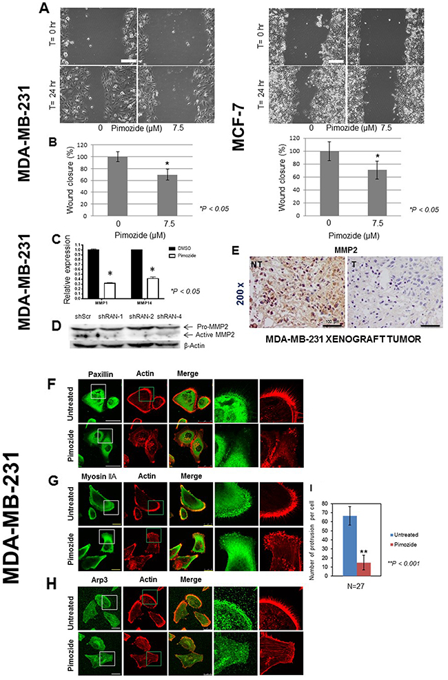 Pimozide suppresses the migration of breast cancer cells and reduces the expression of metalloproteinases (MMPs) in vitro and in vivo.