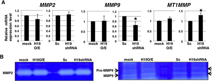 H19 does not contribute to MMP activity in PDAC cells.
