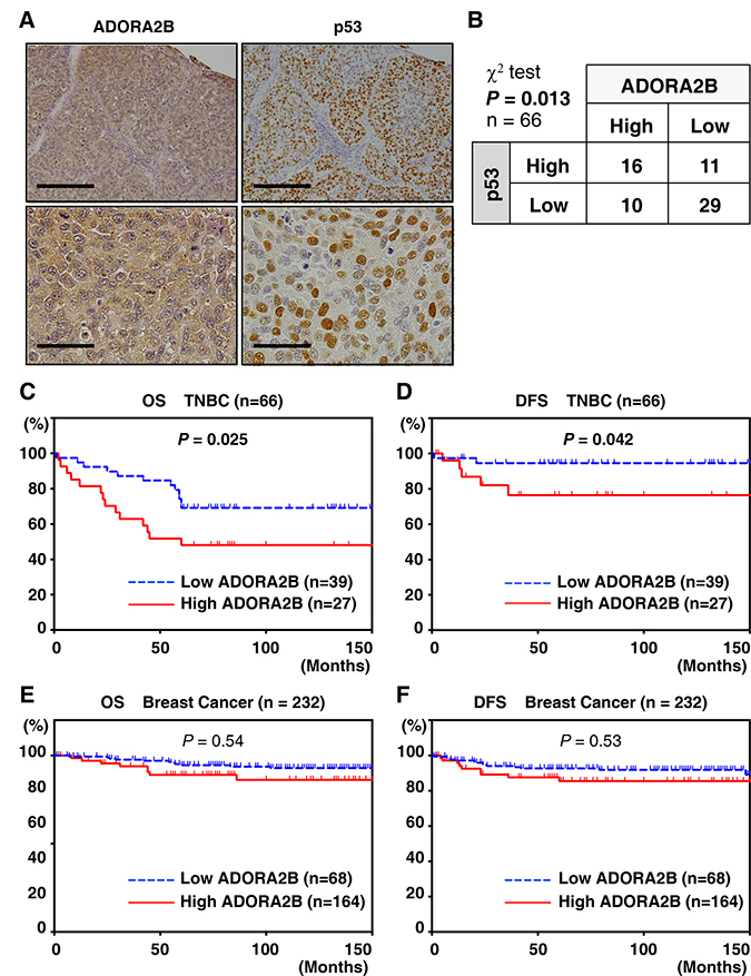 ADORA2B expression is correlated with p53 expression and poor prognosis in TNBC samples.