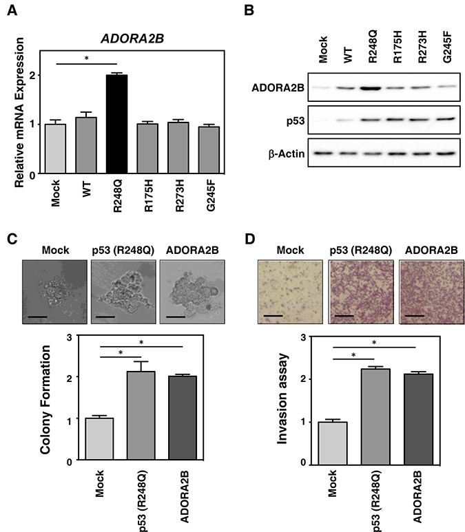 Mutant TP53 (R248Q) induces ADORA2B expression and tumorigenesis in breast cancer cells.