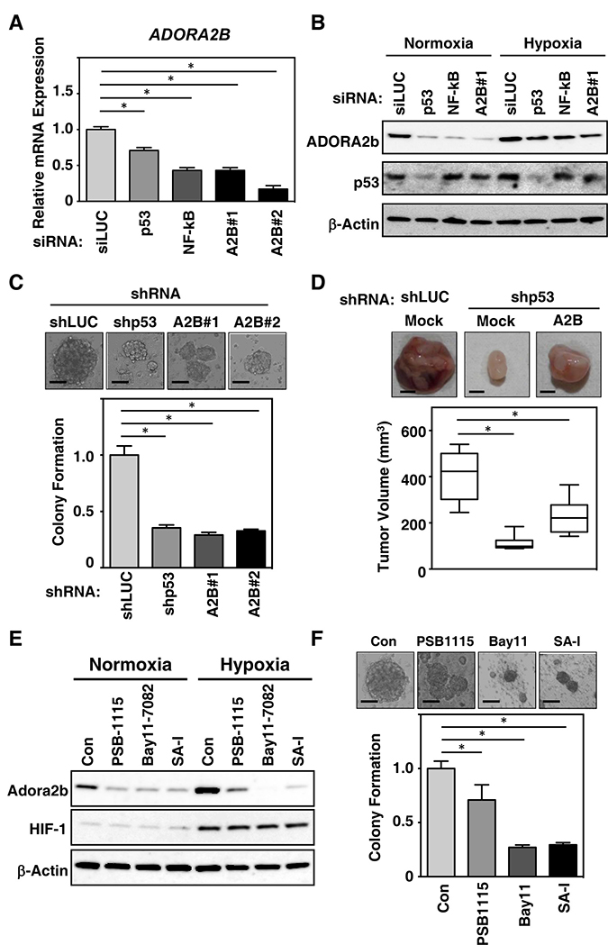 Mutant TP53 depletion inhibits breast cancer tumorigenesis and modulates ADORA2B induction through a gain-of function of mutant TP53.
