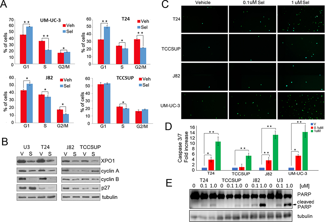 Selinexor induces cell cycle arrest and apoptosis.