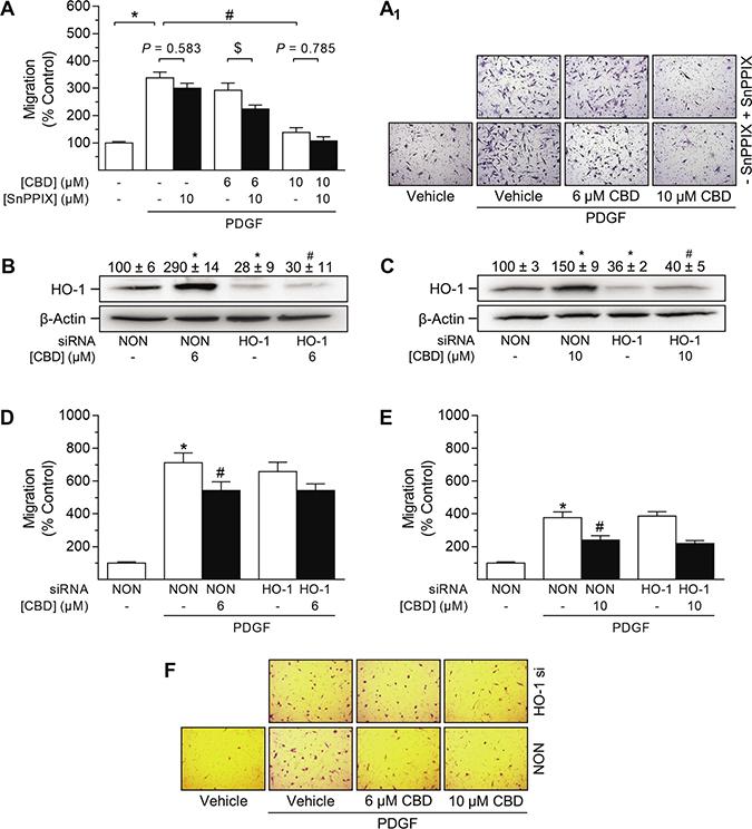 Impact of HO-1 siRNA on CBD-mediated anti-migratory effects in HUASMC.