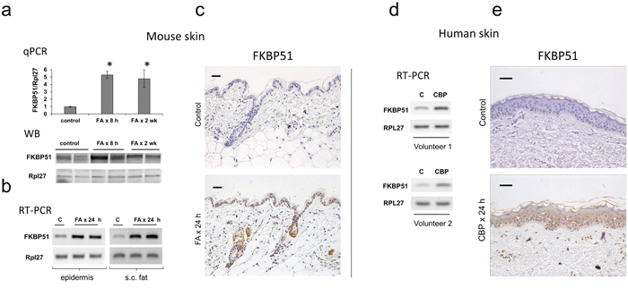 Induction of FKBP51 expression in the skin by glucocorticoids.
