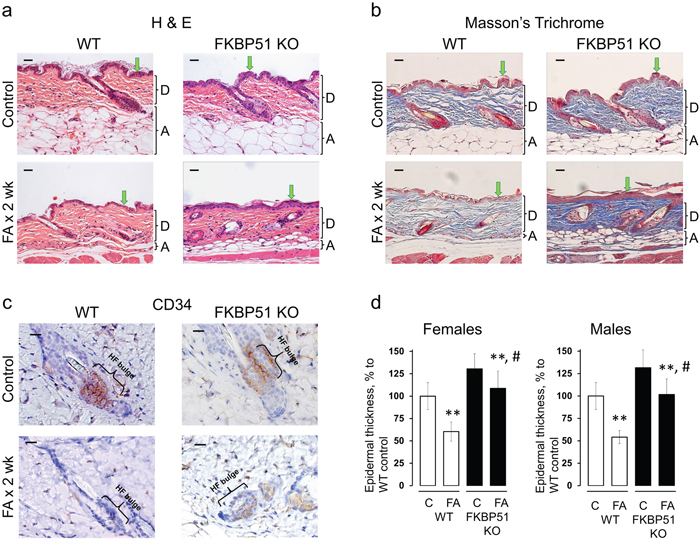 Resistance of FKBP51 KO mice to glucocorticoid-induced skin atrophy.