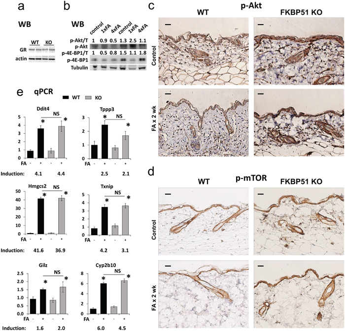 Effects of FKBP51 KO on GR function and Akt/mTOR phosphorylation in murine skin.