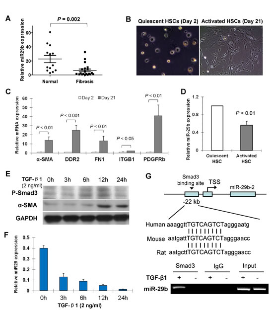 miR-29b is downregulated in liver fibrosis and in activated hepatic stellate cells (HSCs) and down-regulation of miR-29b is mediated by Smad3.