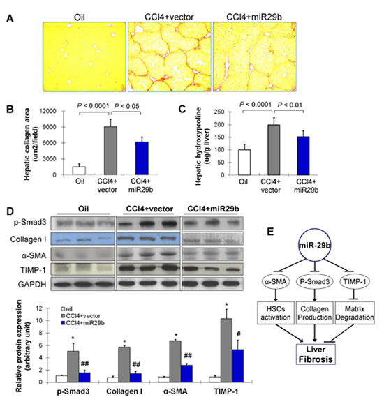 Gene transfer of miR-29b prevents CCl4-induced liver fibrosis in mice.
