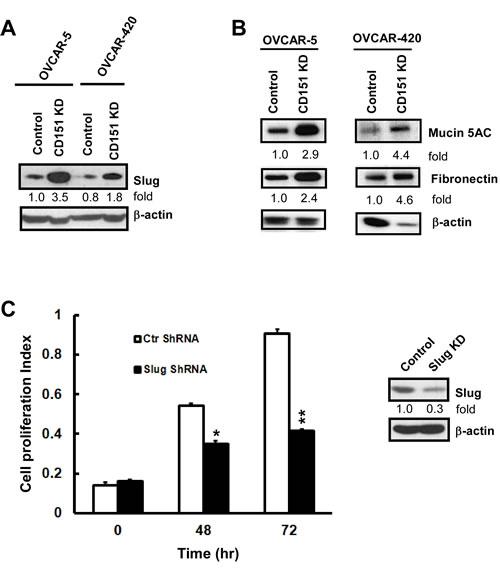 A functional link between CD151, EMT and Slug in ovarian cancer cells.