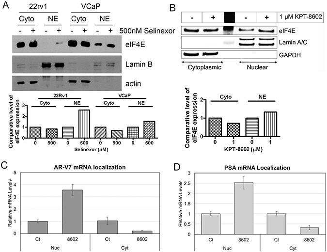 SINE regulates eIF4E to retain AR-v7 RNA in nuclear compartment.