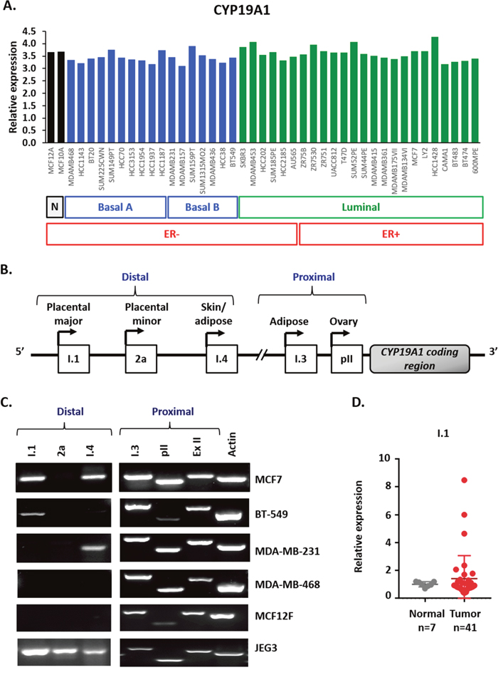 Multiple aromatase transcripts are expressed in multiple cancer cell lines, and the placental aromatase transcript is expressed in breast cancer tissues.