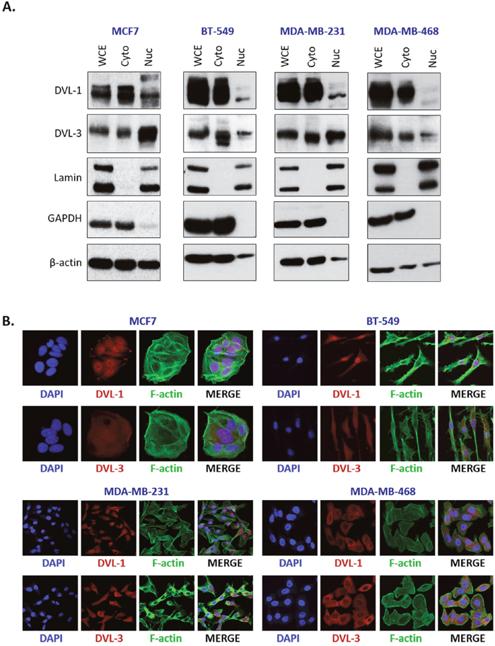 DVL proteins are localized in the nucleus and cytoplasm of different breast cancer cells.