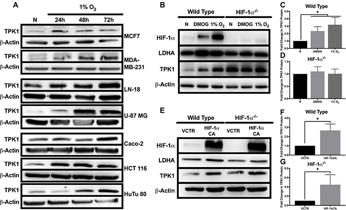 Effect of hypoxic stress and HIF-1α on TPK1 expression.