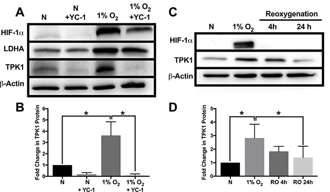 Attenuation of TPK1 expression using pharmacological inhibition of HIF-1α and reoxygenation.