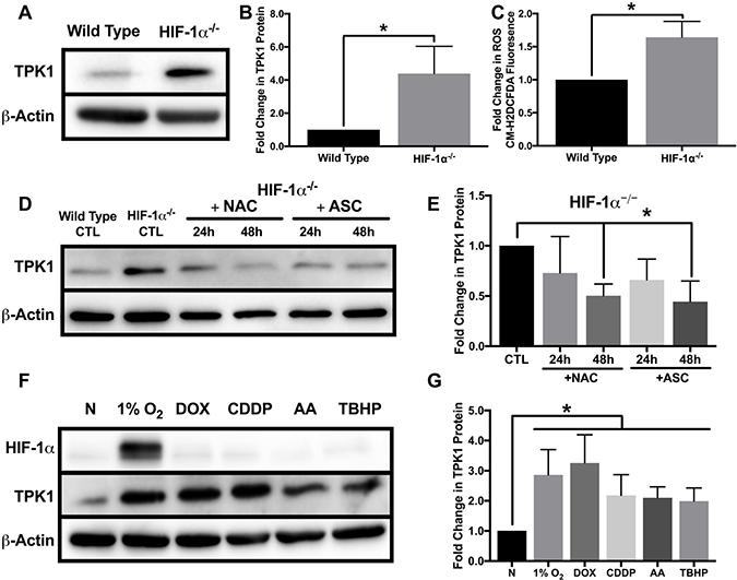 Oxidative stress mediated regulation of TPK1.