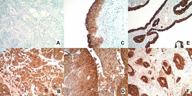 MUC1 immunohistochemistry staining.