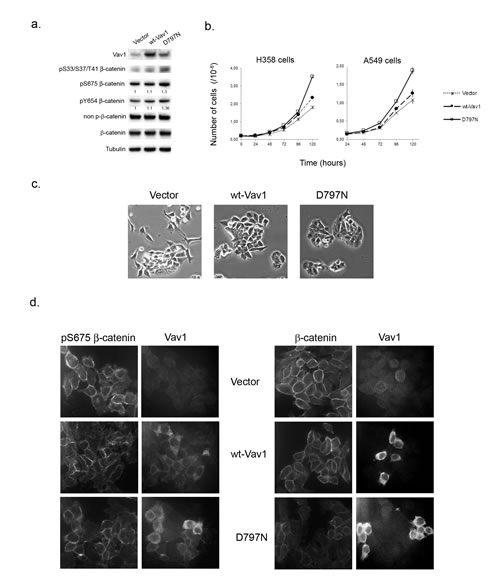 Ectopic expression of Vav1 allows modulation of β-catenin in lung cancer cells.