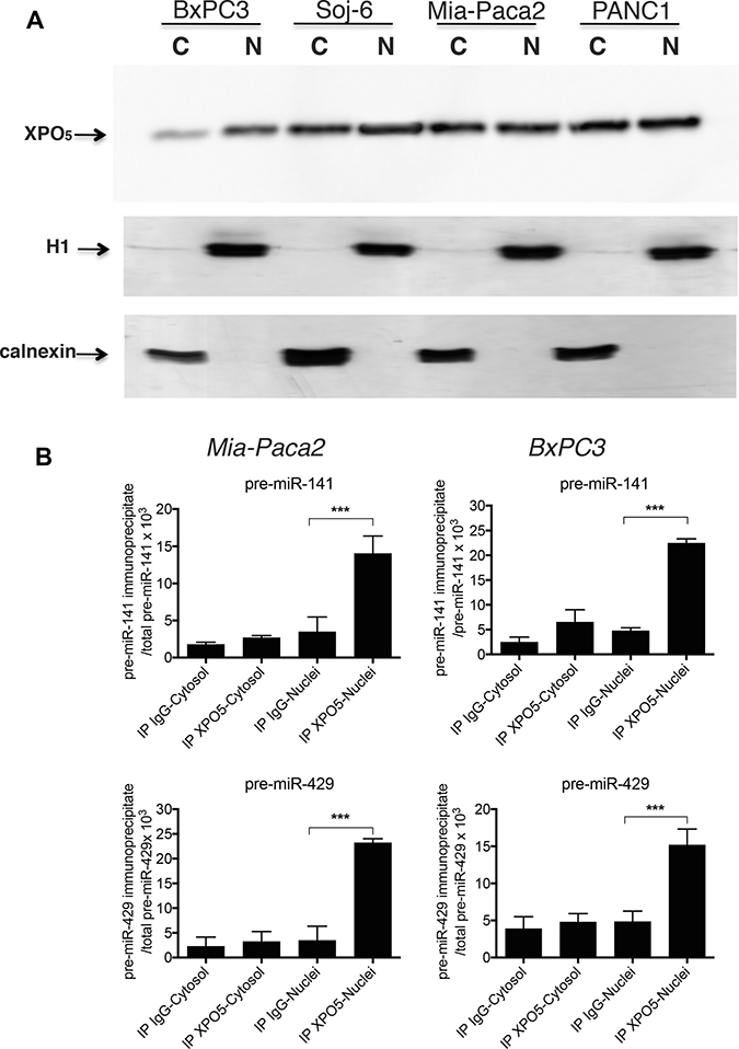 Co-immunoprecipitation of pre-mature miR-200s with XPO5 in tumoral pancreatic cell lines.
