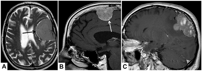 Illustrative examples of the analyzed MRI variables.