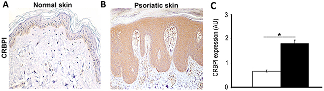 Expression of CRBPI in normal and psoriatic skin.