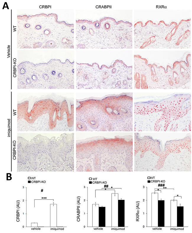 Evaluation of CRBPI, CRABPII and RXRα expression in imiquimod-induced psoriatic skin of CRBPI-knockout and wild-type mice.