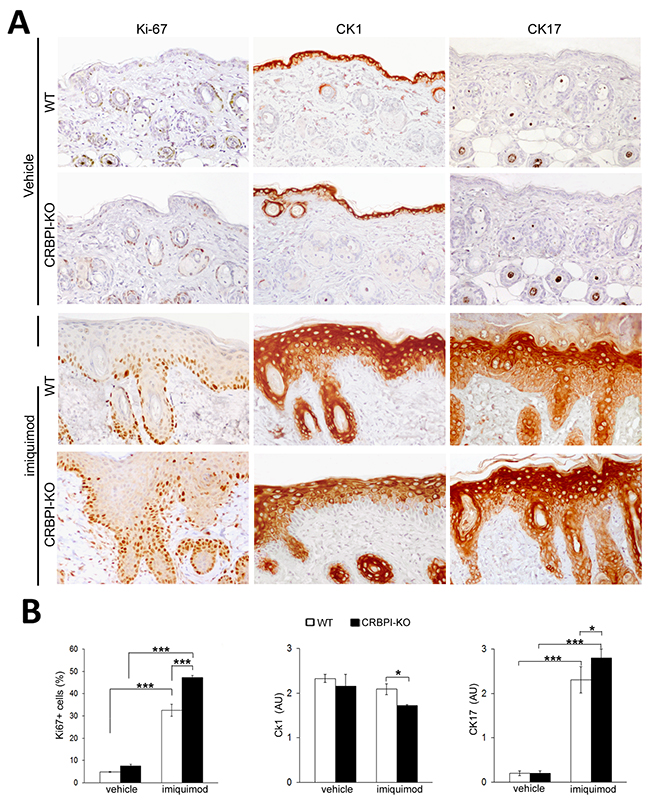 CRBPI gene loss influences epidermal proliferation and expression of differentiation markers.