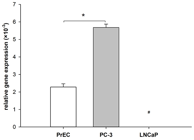 Differential expression of phospholipase A2 receptor 1 (PLA2R1) in normal and malignant prostate cells.