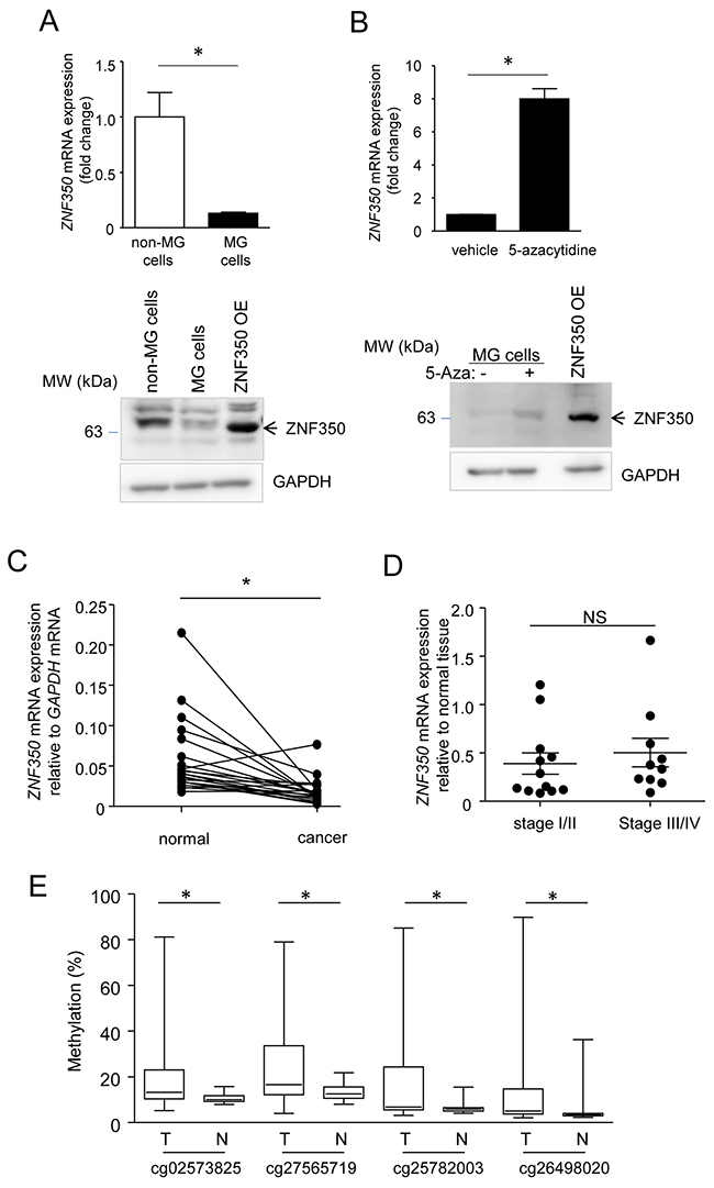 Down-regulated expression of ZNF350 mRNA in MG cells and colorectal cancer.