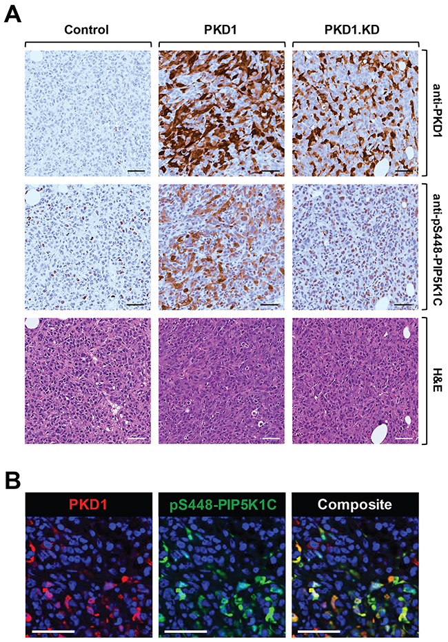 PKD1 regulates phosphorylation of PIP5K1C at S448 in orthotopic tumors in vivo.