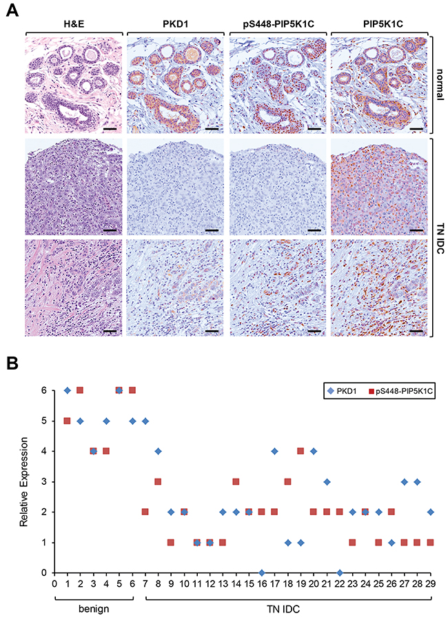 PKD1 expression status and phosphorylation of PIP5K1C at S448 correlate in patient samples of TNBC.