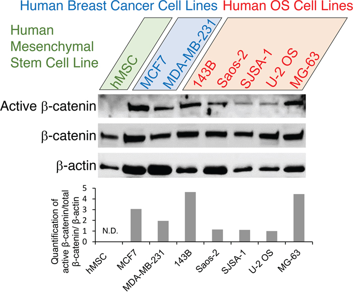 Expression analysis of Wnt pathway genes in human OS cells.