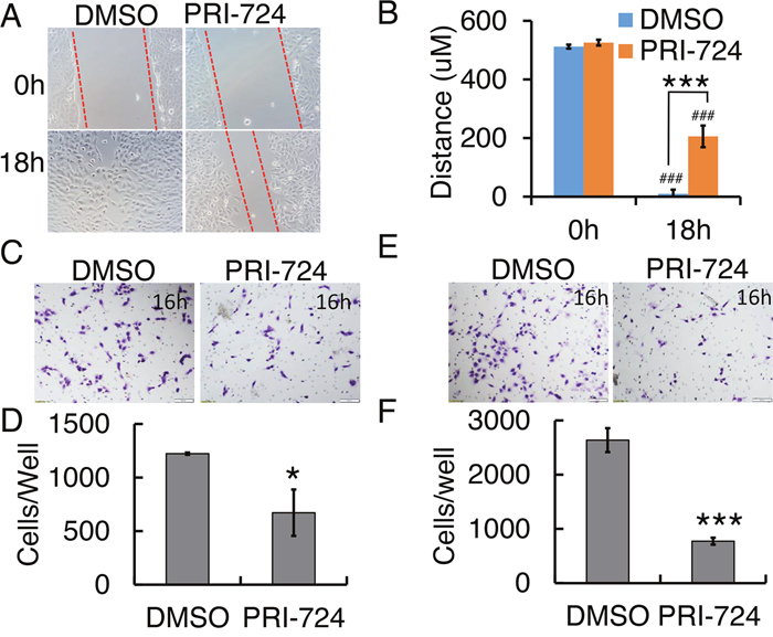 Effect of PRI-724 on 143B cell migration and invasion.