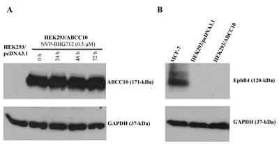 Immunoblot analysis of the expression of ABCC10 transporter and EphB4.