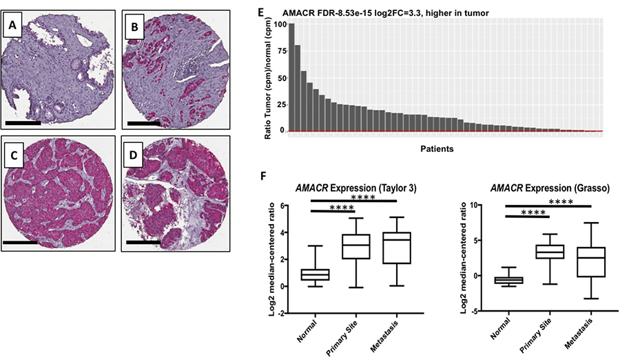 Clinical relevance of AMACR expression in primary and metastatic prostate cancer.