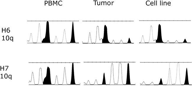 Loss of heterozygosity (LOH) examined in two primary tumor samples and established primary cell lines H6 and H7 in comparison to normal corresponding blood samples.