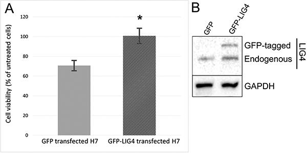 Sensitivity to BMN673+TMZ depends on LIG4 expression.