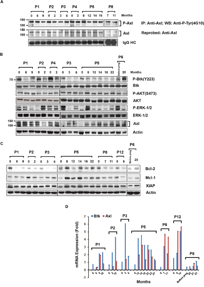 Expression of phosphorylated Axl, signal proteins and anti-apoptotic proteins in CLL B-cells from ibrutinib treated patients.