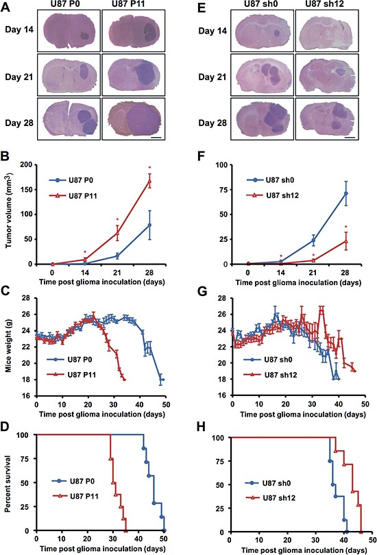 EB1 expression modulates tumor growth in orthotopic nude mouse model.