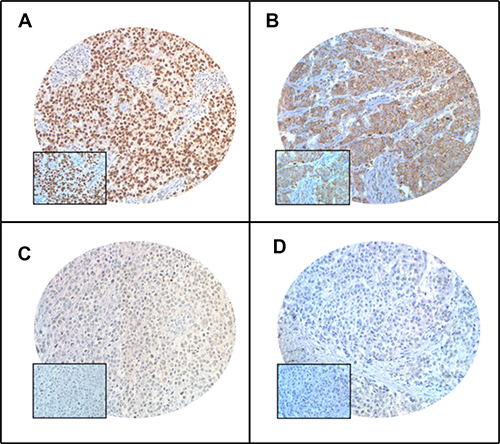 Tissue microarray based immunohistochemistry analysis of PARP and XIAP in breast cancer (BC) patients.