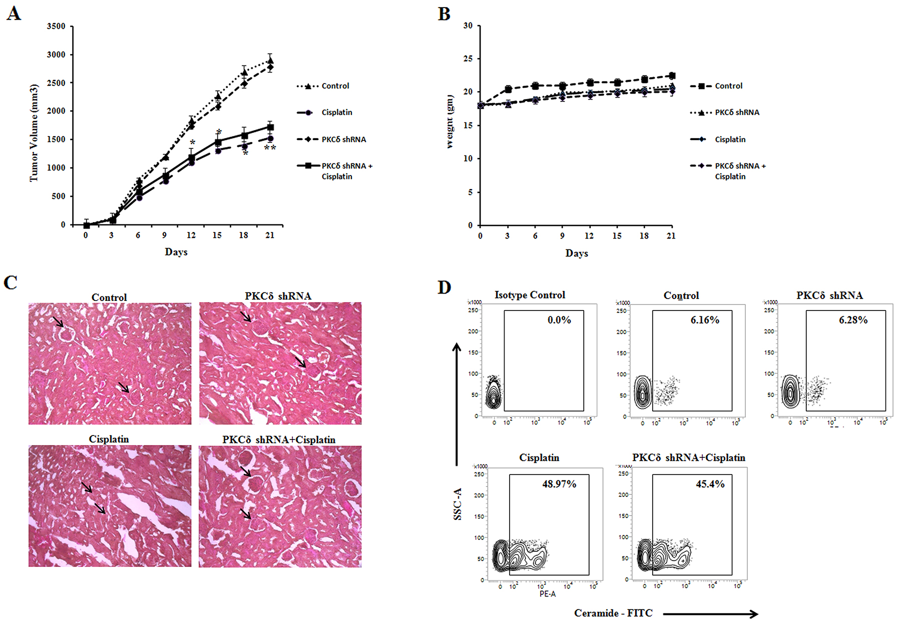 Effect of cisplatin treatment in PKCδ inhibited melanoma tumor growth in vivo.