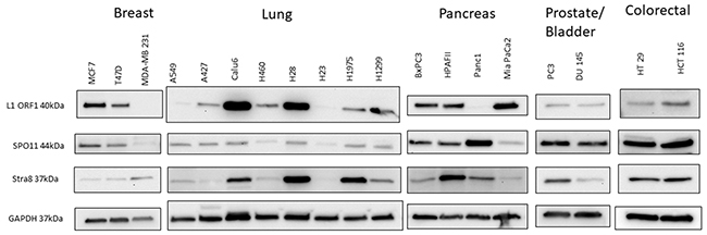Western blot analysis of protein expression of LINE-1 ORF1 and early regulatory meiosis genes (SPO11 and STRA8) in a panel of patient-derived breast, lung, pancreas, prostate, bladder and colorectal cancers.