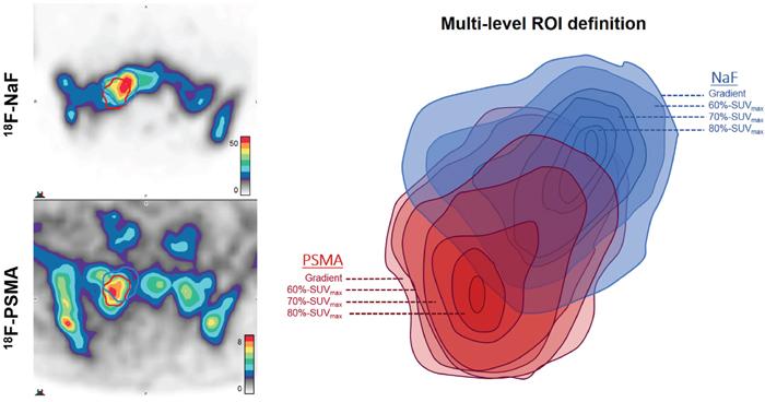 Illustrative example of multi-level segmentation by tracer activity.