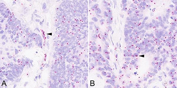 Insulin receptor isoform A in situ hybridization.