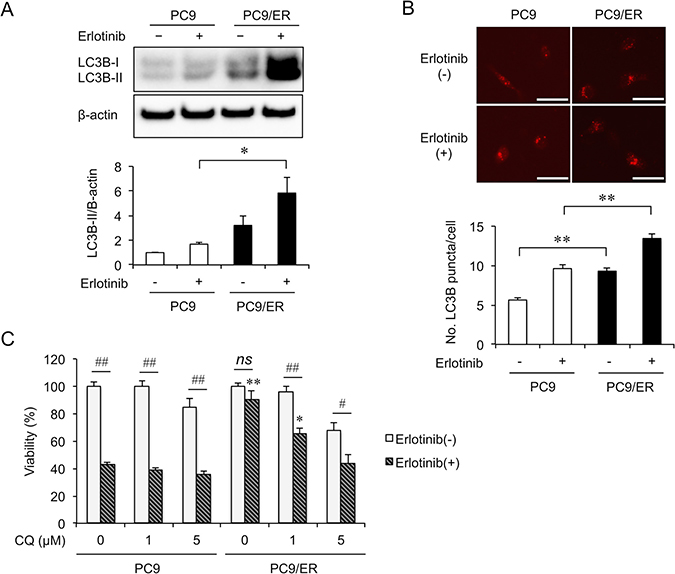 Autophagy is enhanced in the EGFR-TKI resistant cell.