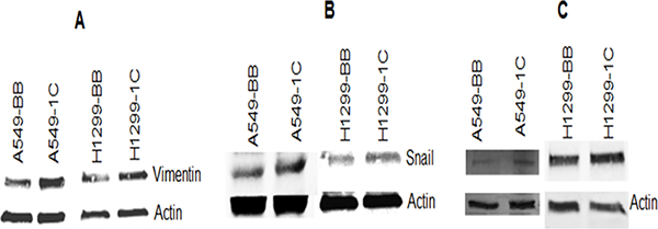 RASSF1C up-regulates the expression of vimentin,