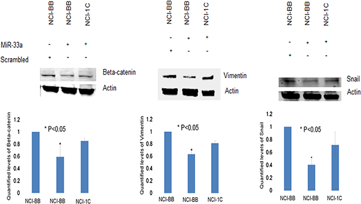 RASSF1C attenuates the effects miR-33a-5p on EMT marker genes.