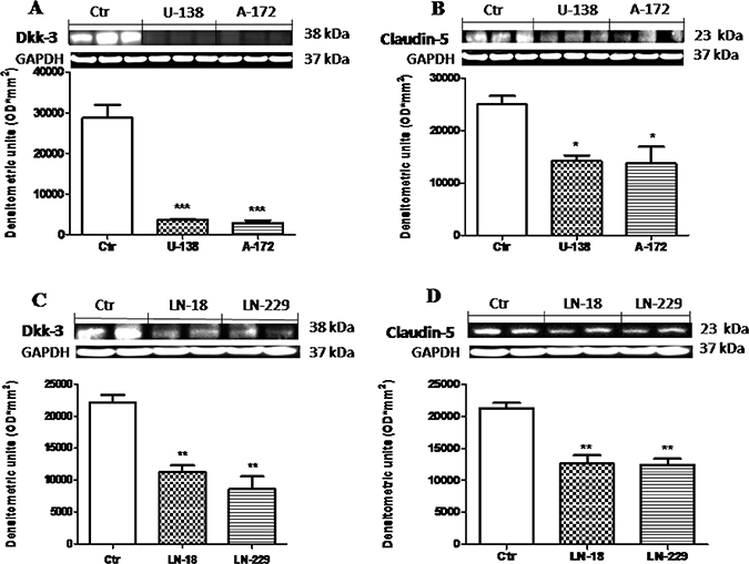 Role of Dkk-3 and claudin-5 in human GBM cells.